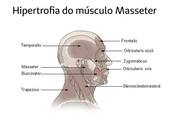 Hipertrofia Masseter