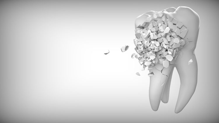 arte visual de um dente, com diversas partes saindo dele, representando o desgaste do bruxismo nos dentes