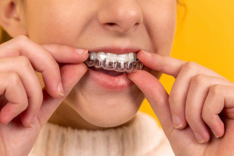 imagem de uma pessoa, em fundo amarelo, colocando um aparelho transparente nos dentes